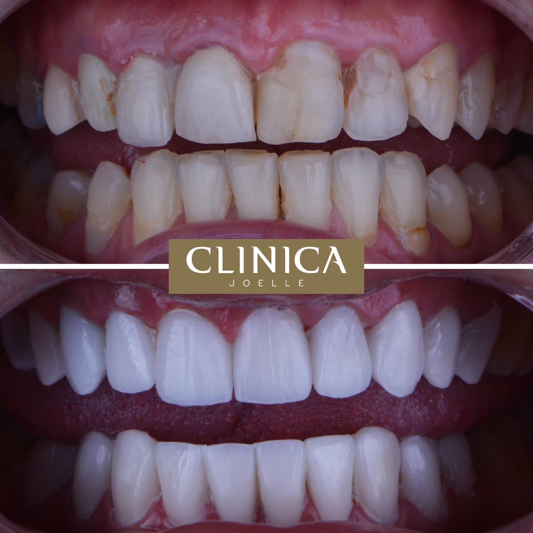 Before&After_Dr.Firas_2.jpg