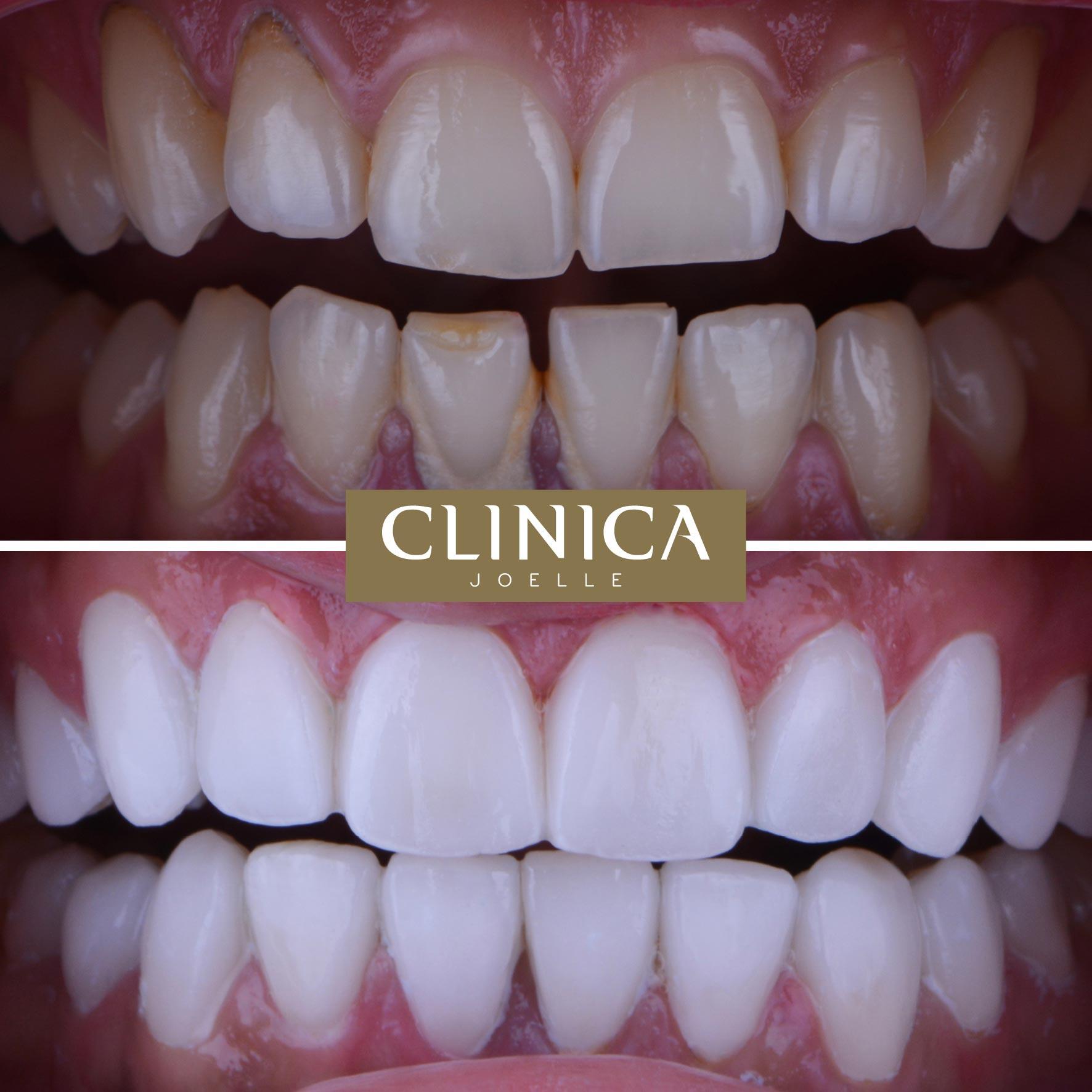 Before&After_Dr.Firas_4.jpg