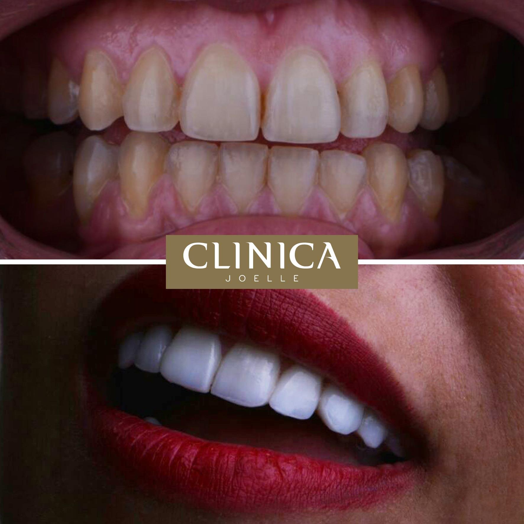Before&After_Dr.Firas_5.jpg