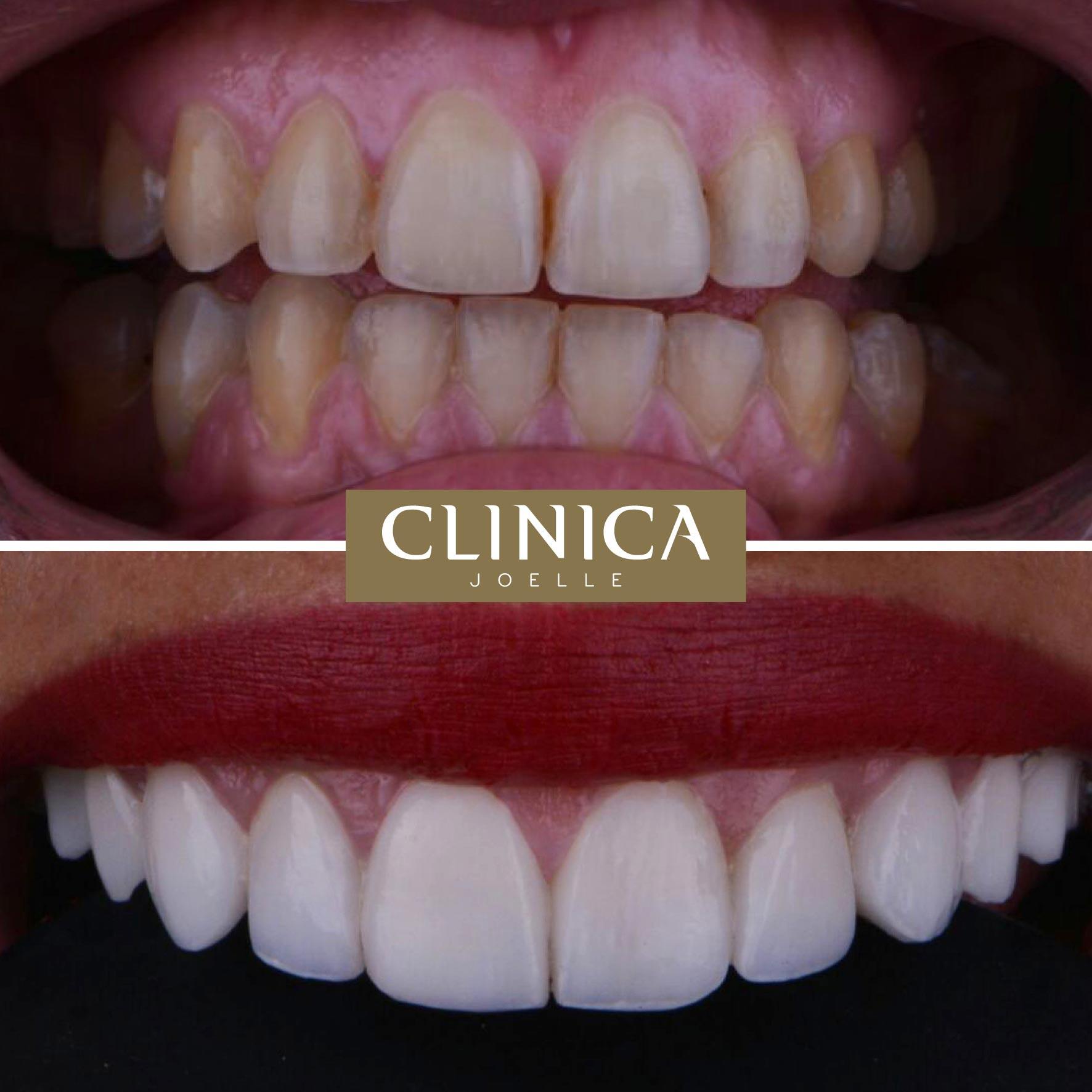 Before&After_Dr.Firas_6.jpg