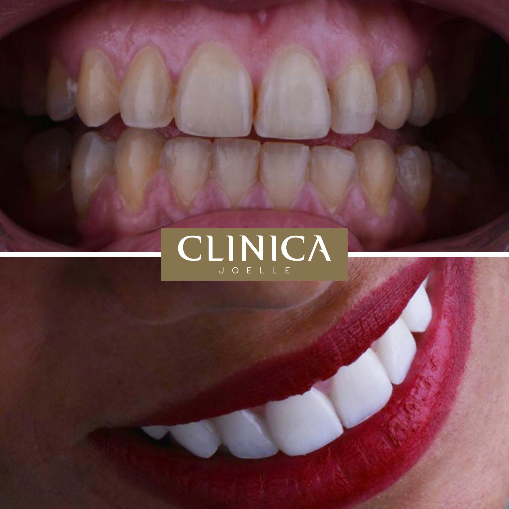 Before&After_Dr.Firas_7.jpg
