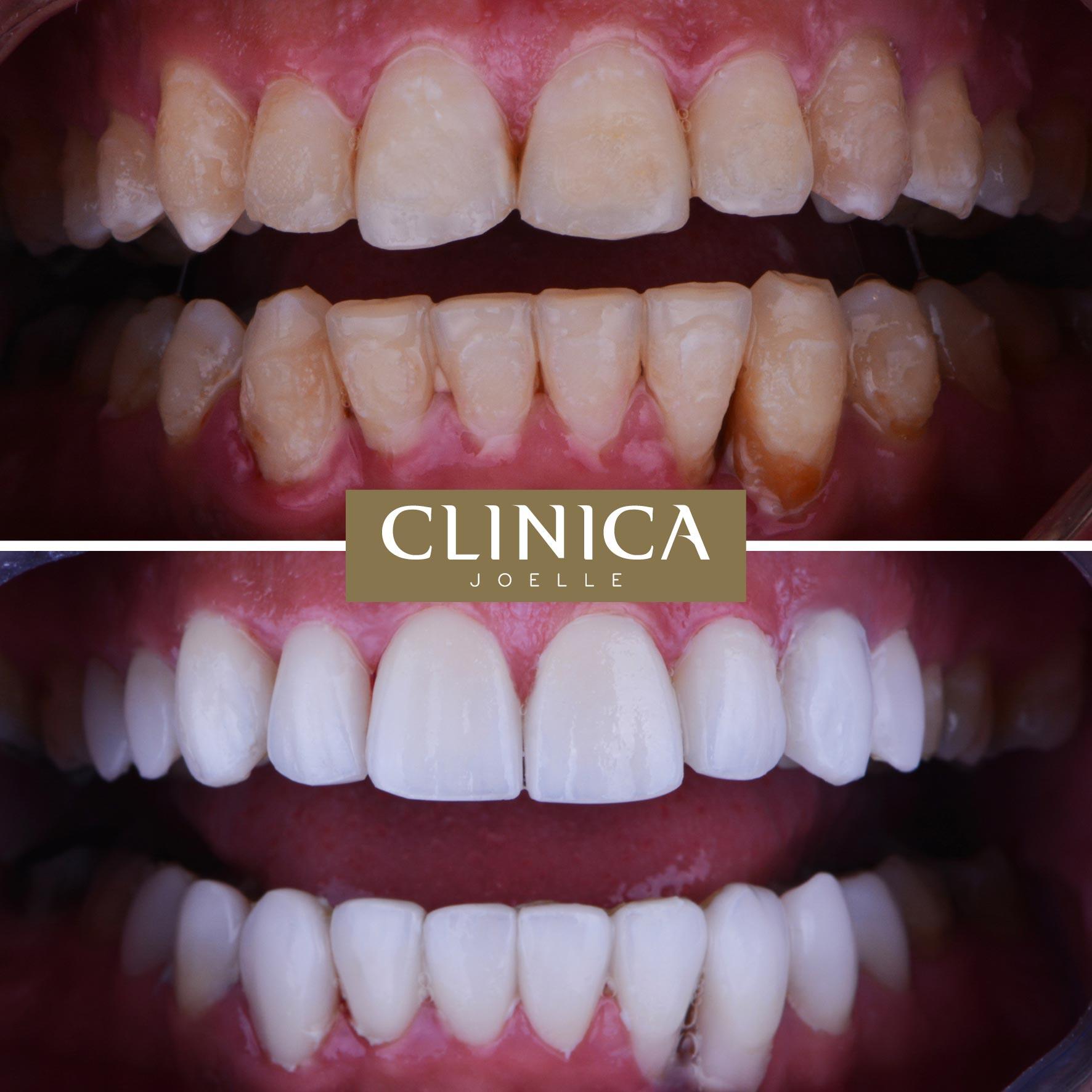 Before&After_Dr.Firas_8.jpg