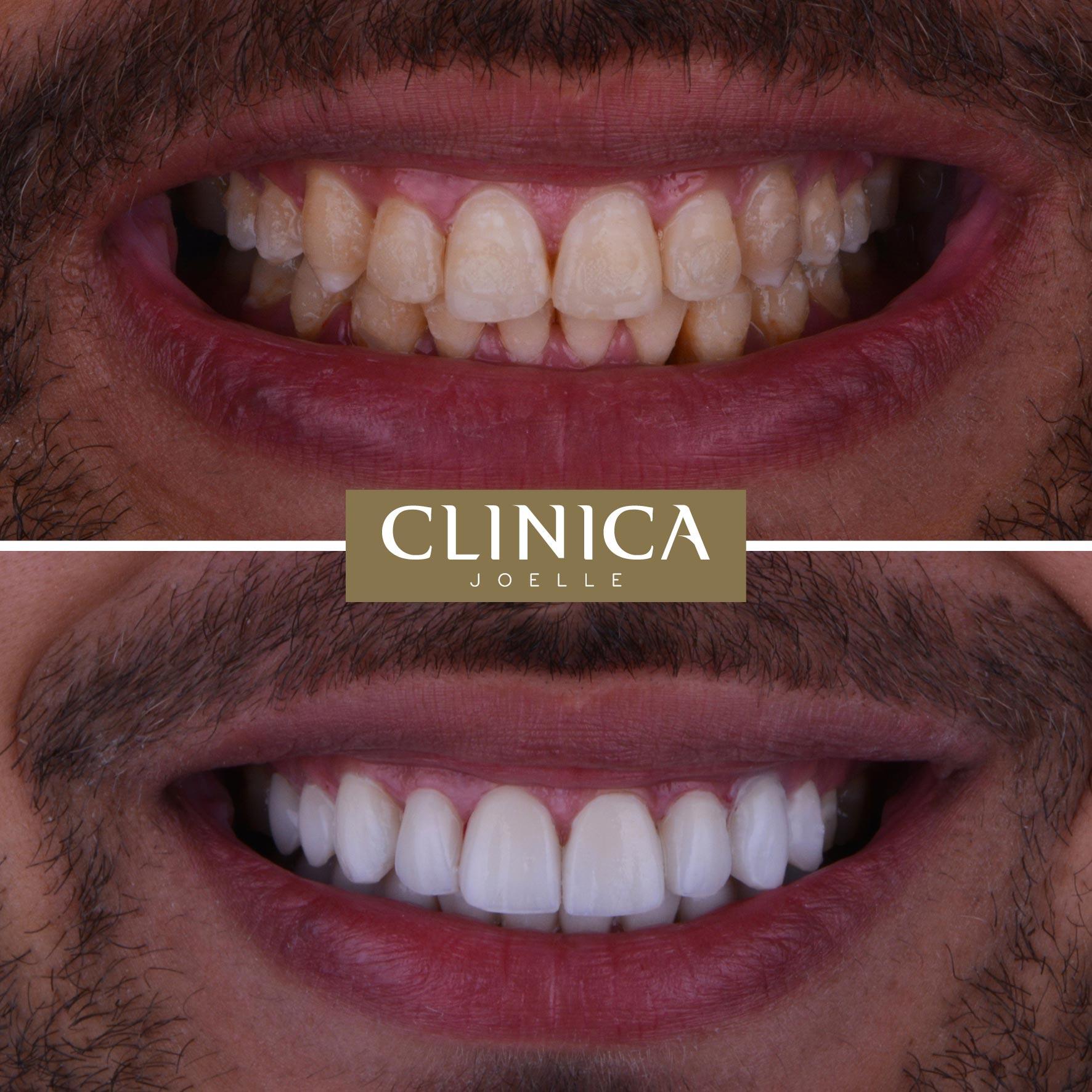 Before&After_Dr.Firas_9.jpg
