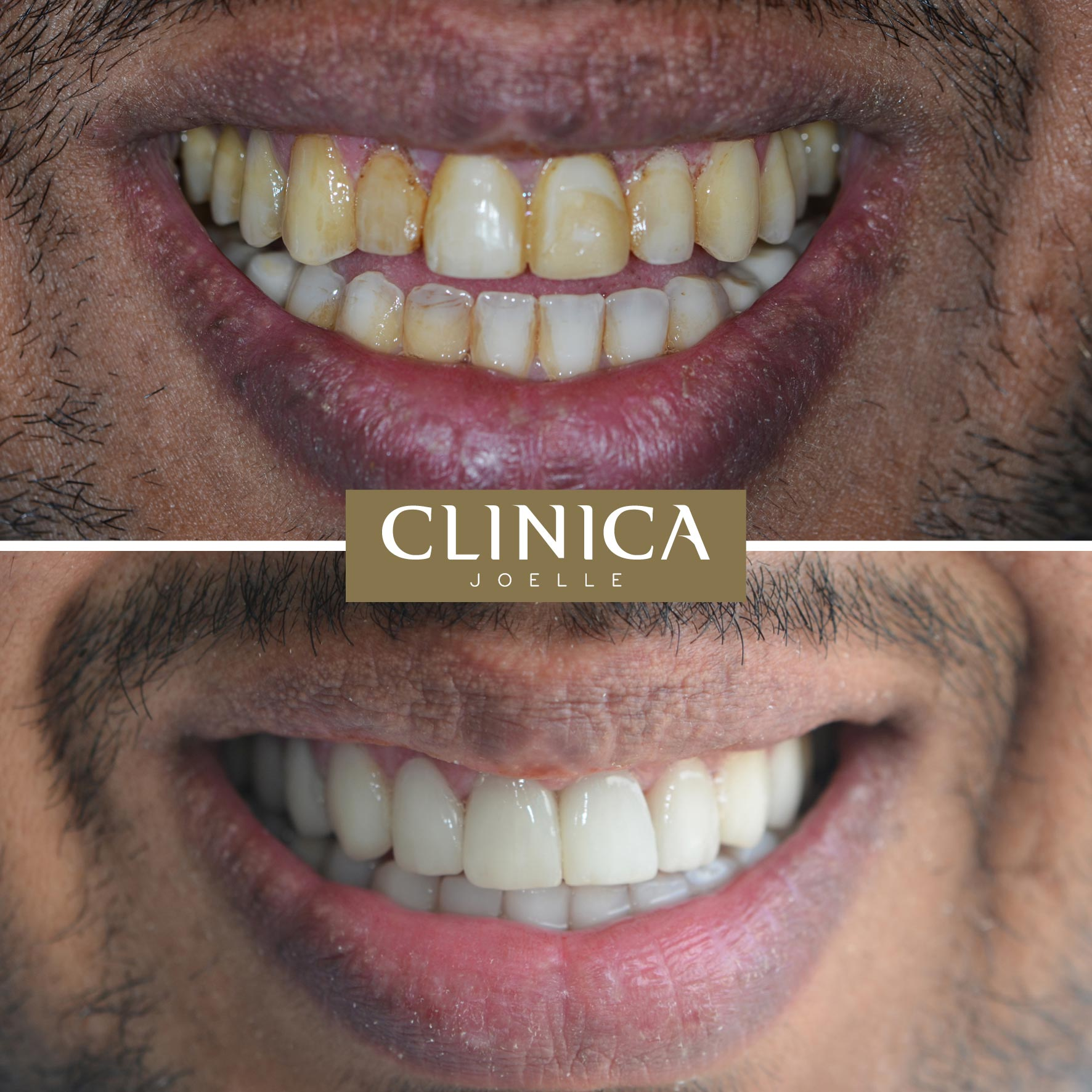 Before&After_Dr.Kinan_3.jpg