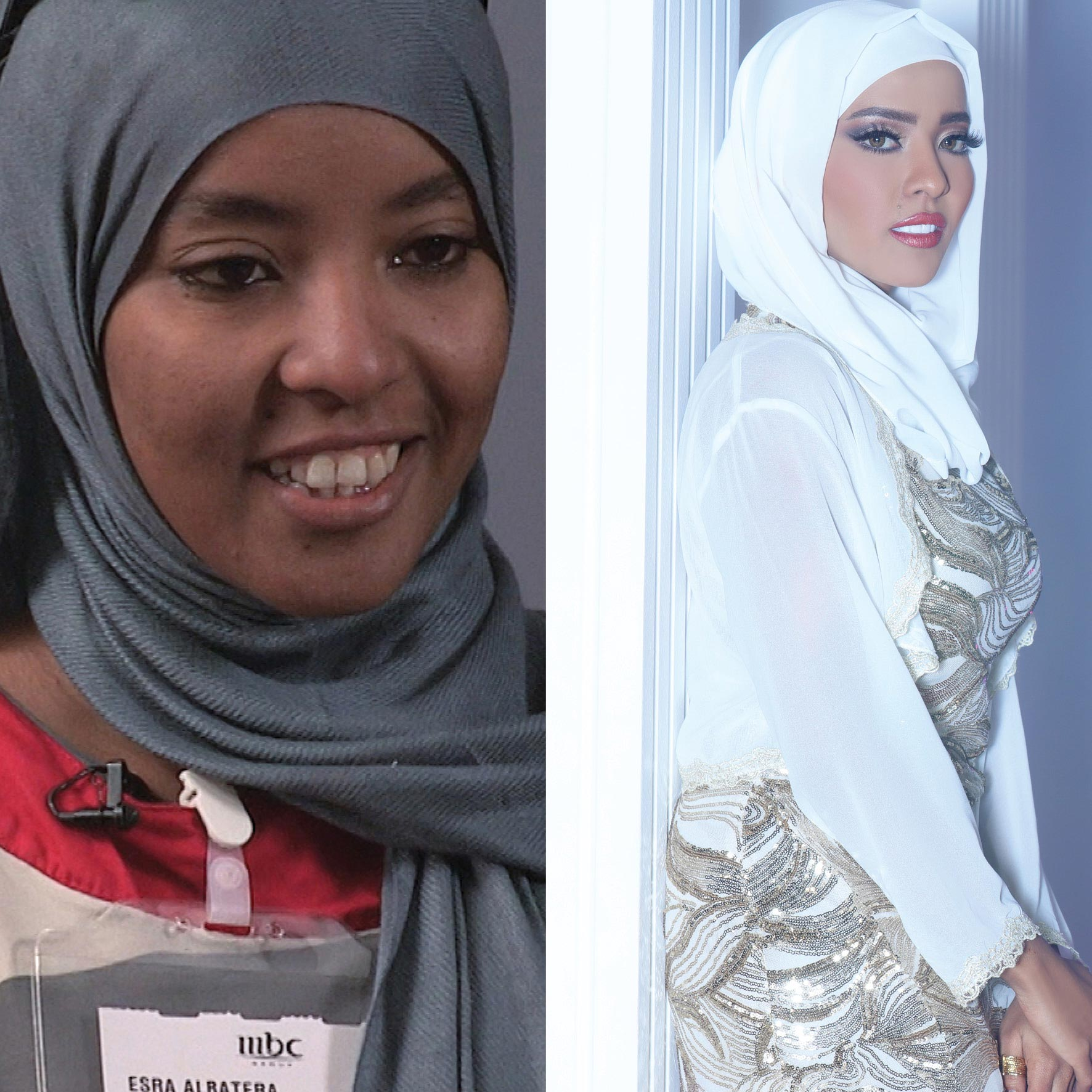 Before&After_CJ_Israa01.jpg