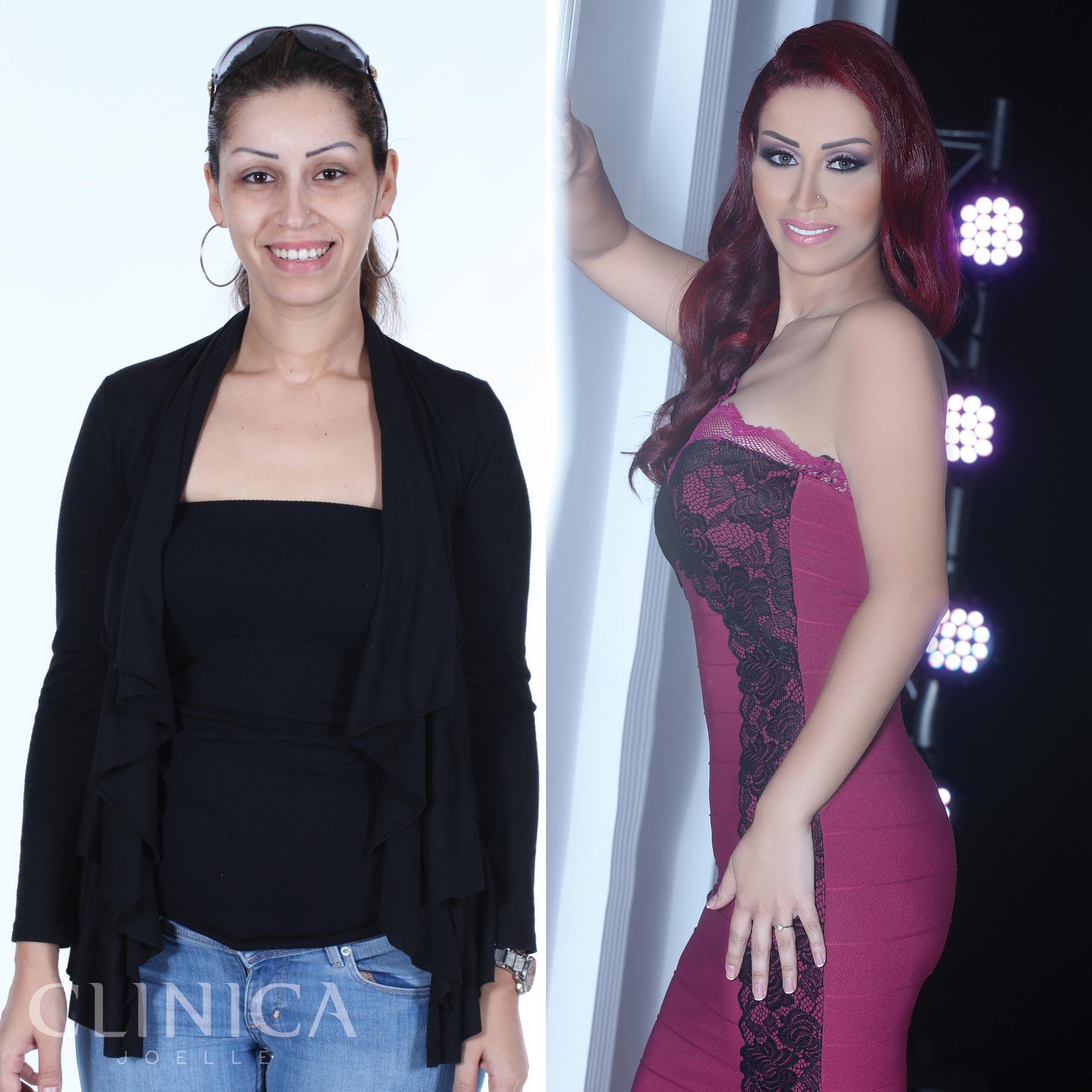 Before&After_CJ_Salwa.jpg