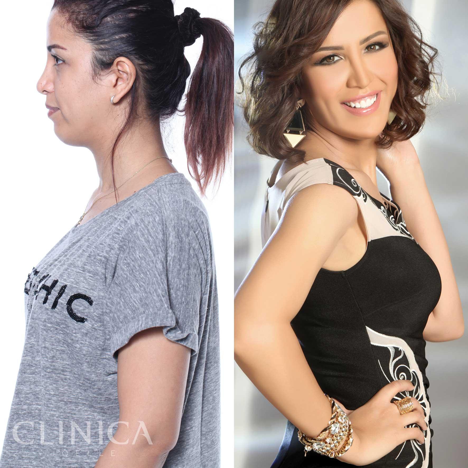 Before&After_CJ_Salwa7.jpg