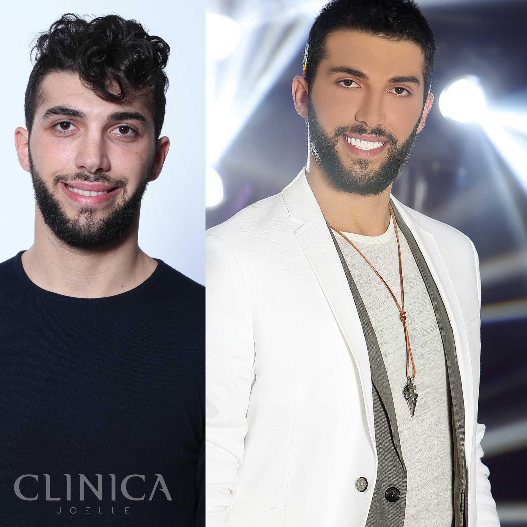 Before&After_CJ_Shahin4.jpg