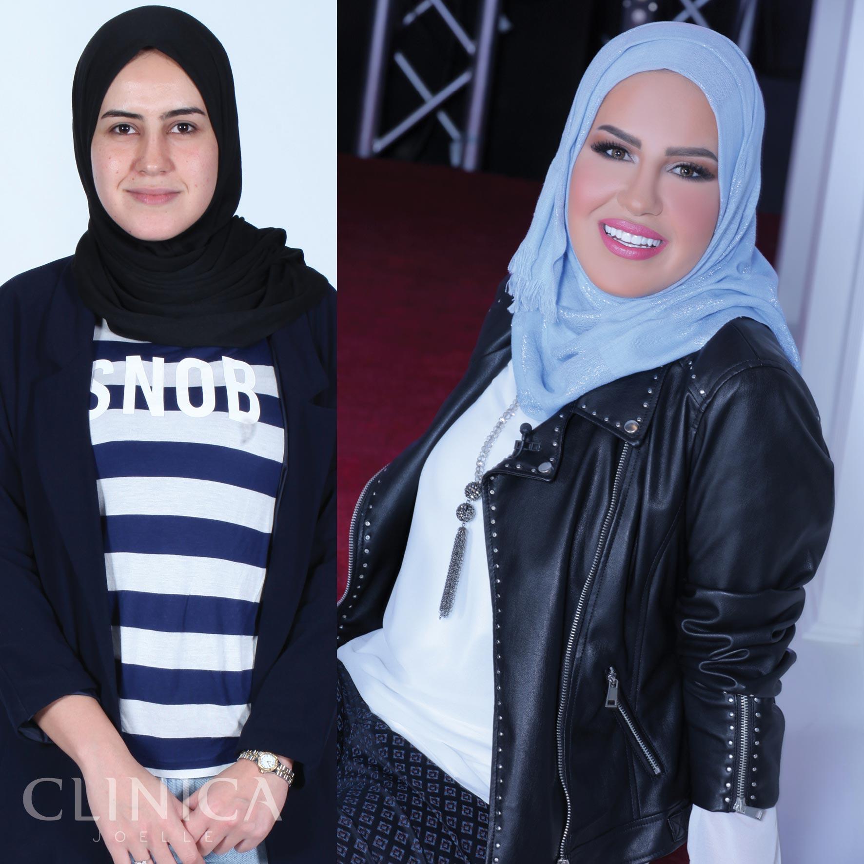 Before&After_CJ_Sumayyah4.jpg