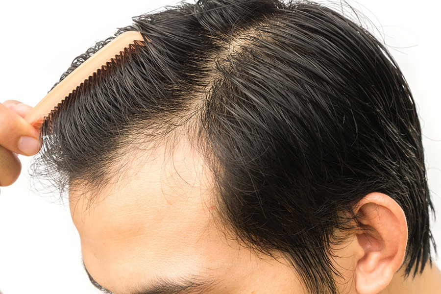 Considering Hair Transplant? Here are a few information!