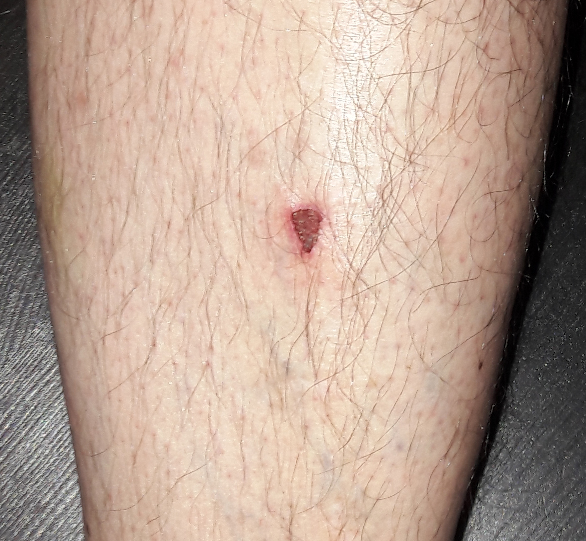 Triangular-leg-scar.jpg