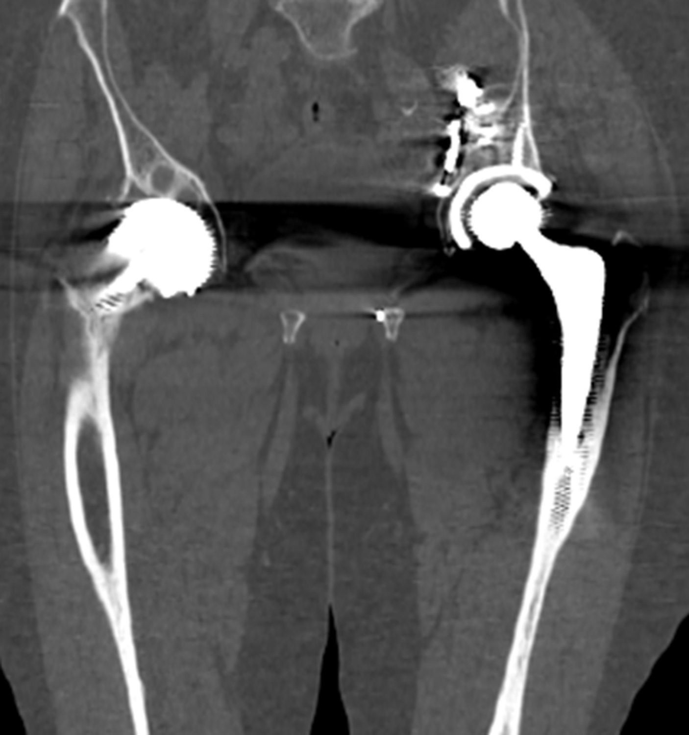 CT scans confirm significant osteolysis around the acetabular cup.