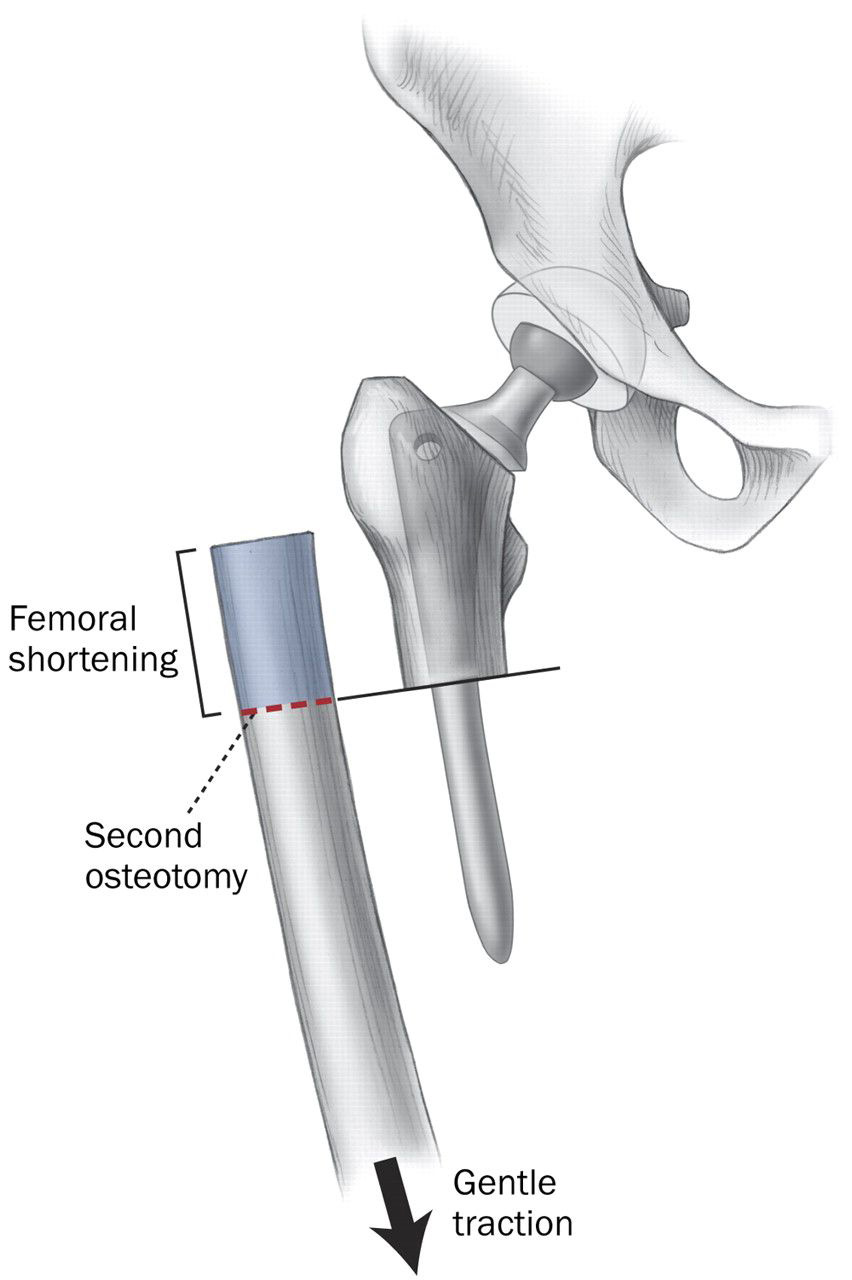 Graphic demonstrating shortening femoral osteotomy. This is required for 2 reasons – to establish equal leg length, and to take the stretch of the sciatic nerve which can only tolerate up to 2 inches of stretch in these operations.