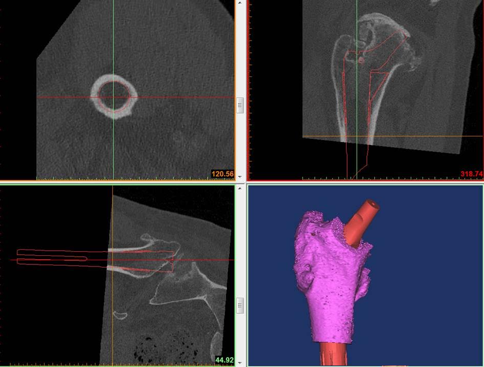 Image 5 (3D CT planning for S ROM) Specialised software can help the surgeon plan the size and combination of components for the implant, based on the CT scan.