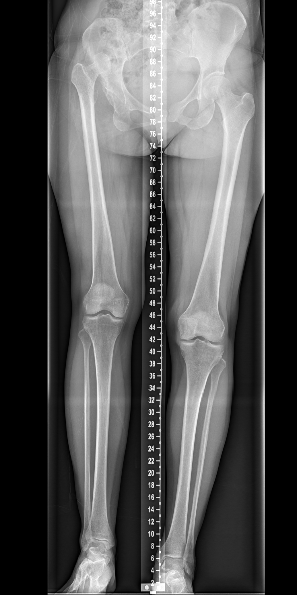 This radiograph allows the surgeon to determine the best method to attain a more symmetrical leg length.  In this case the hip centre needs to be brought equal to the other side, and will be achieved by use of a shortening femoral osteotomy.