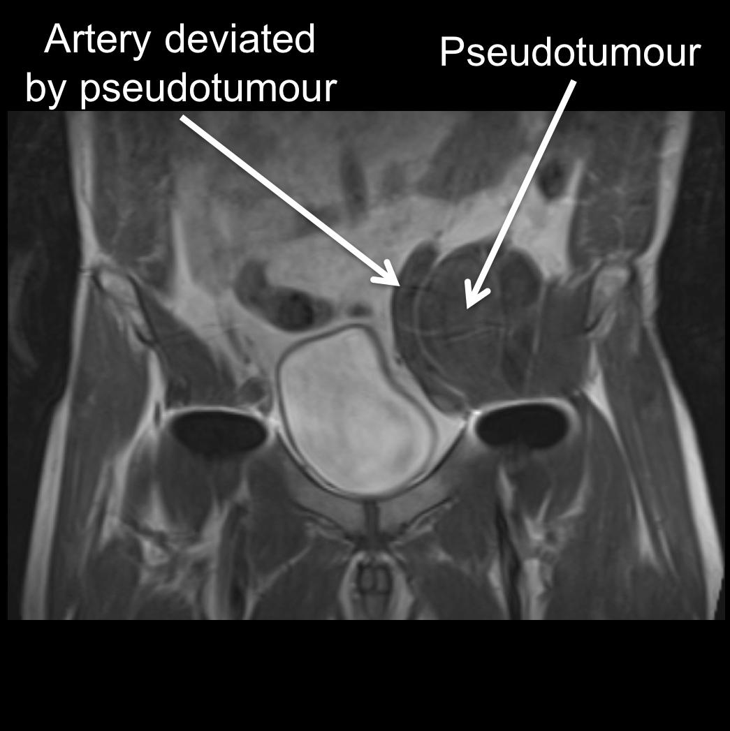Square coronal MRI.png