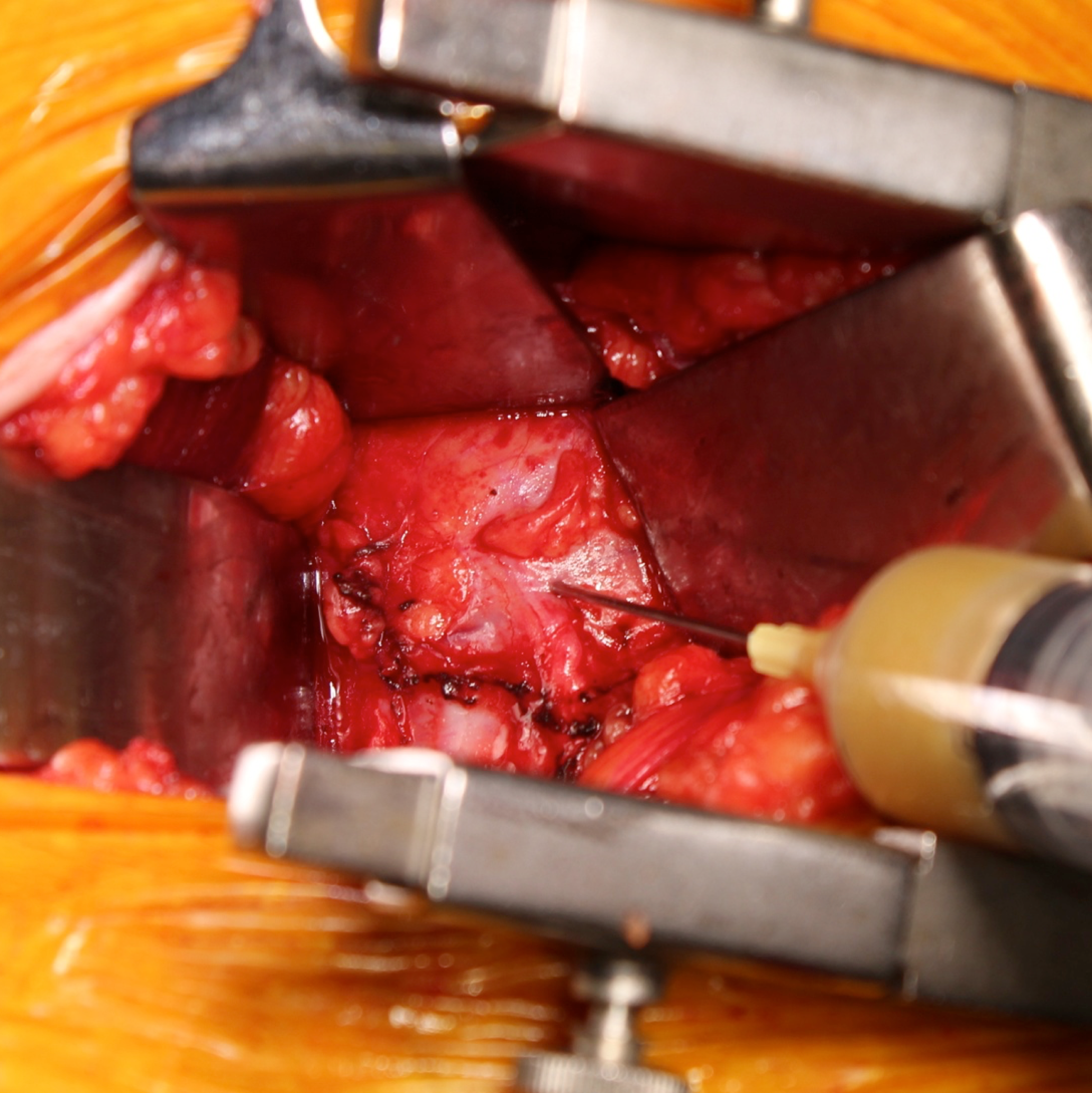 Square intraop picture drainage.png