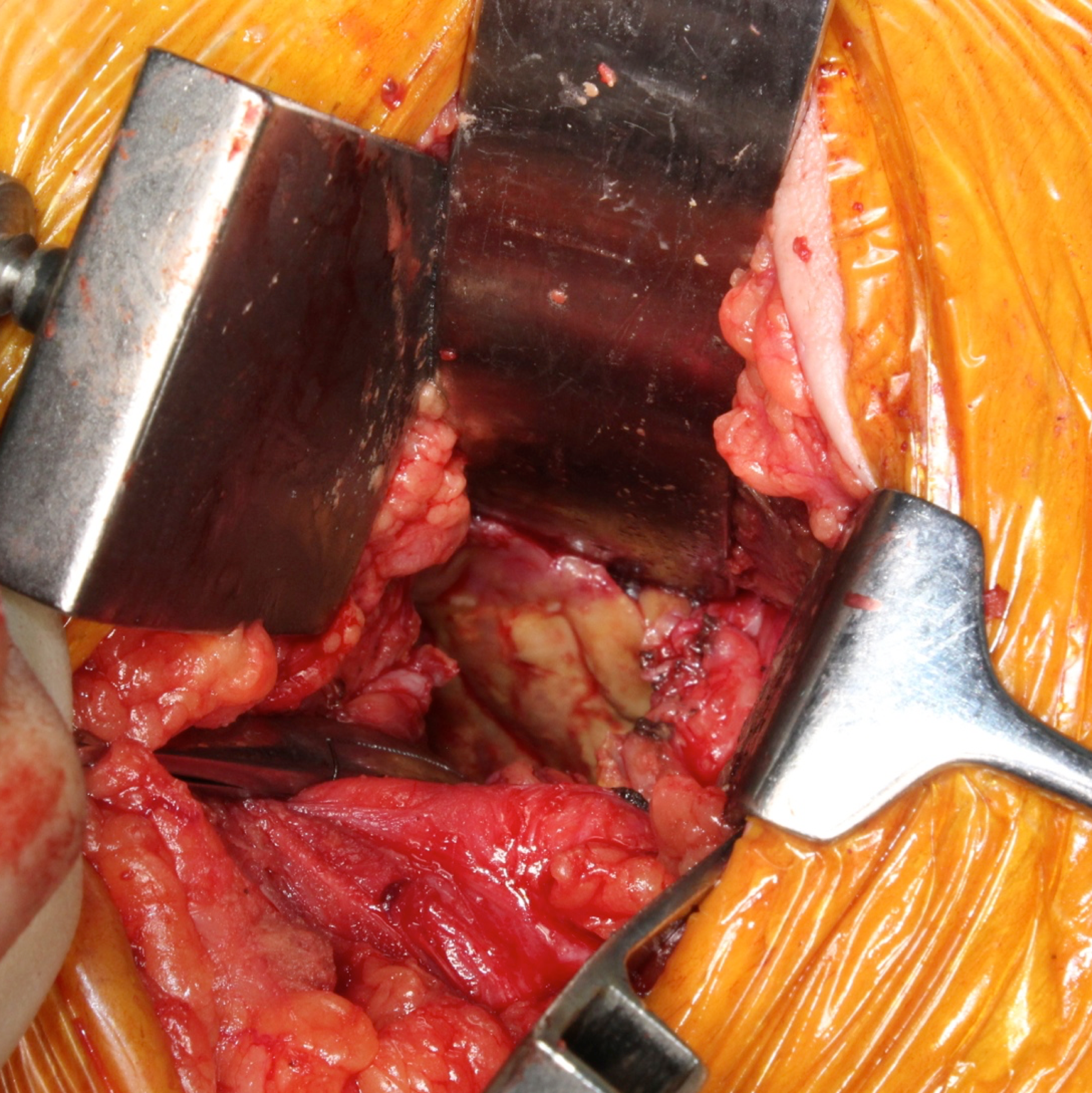 Square intraop picture after removal.png
