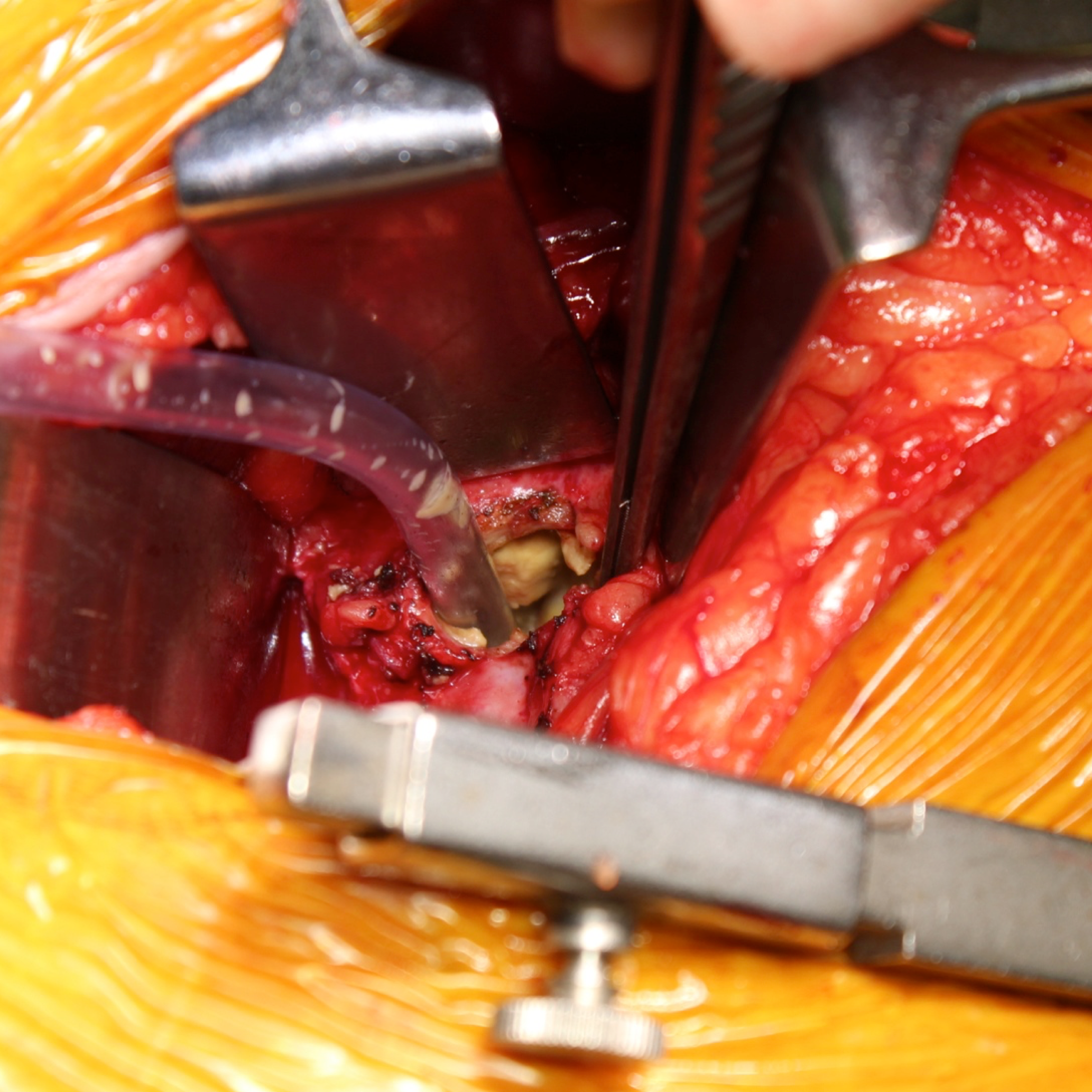 Square intraop picture Inside of pseudotumour.png