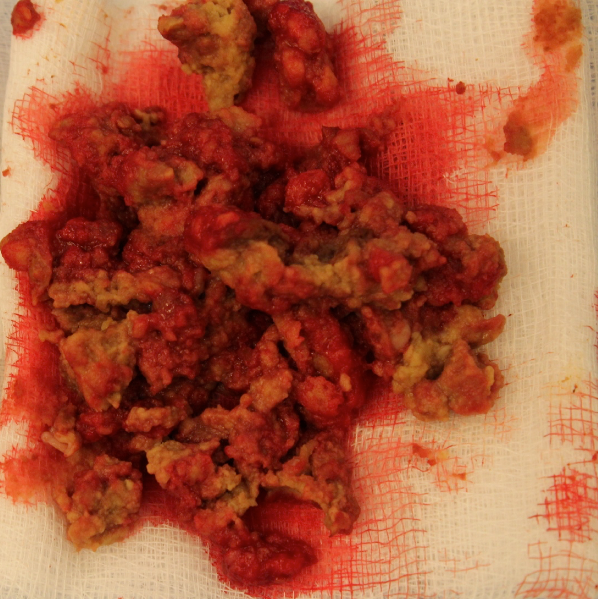 Square intraop picture pseudotumour contents.png