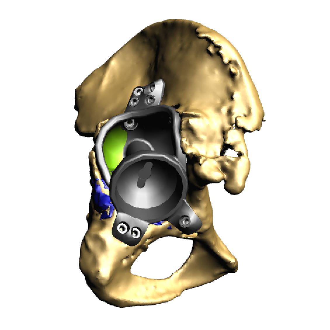 Implant in pelvis 1.png