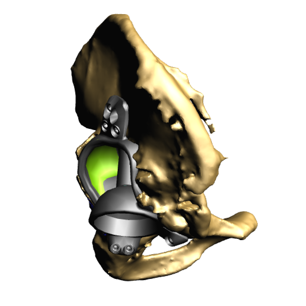 Implant in pelvis 2.png