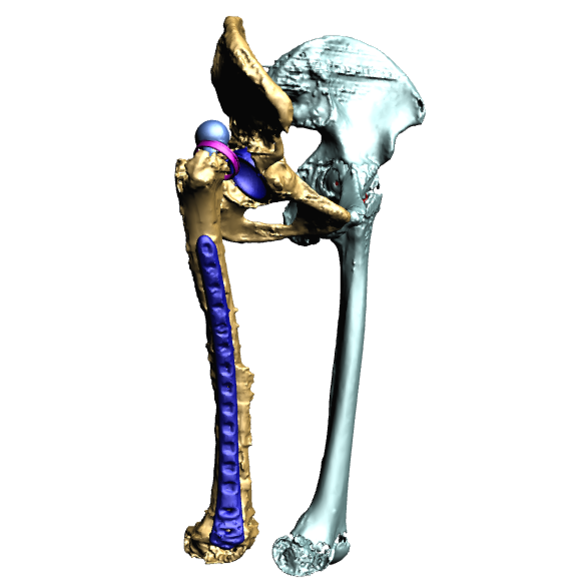 Defect pelvis and femur.png