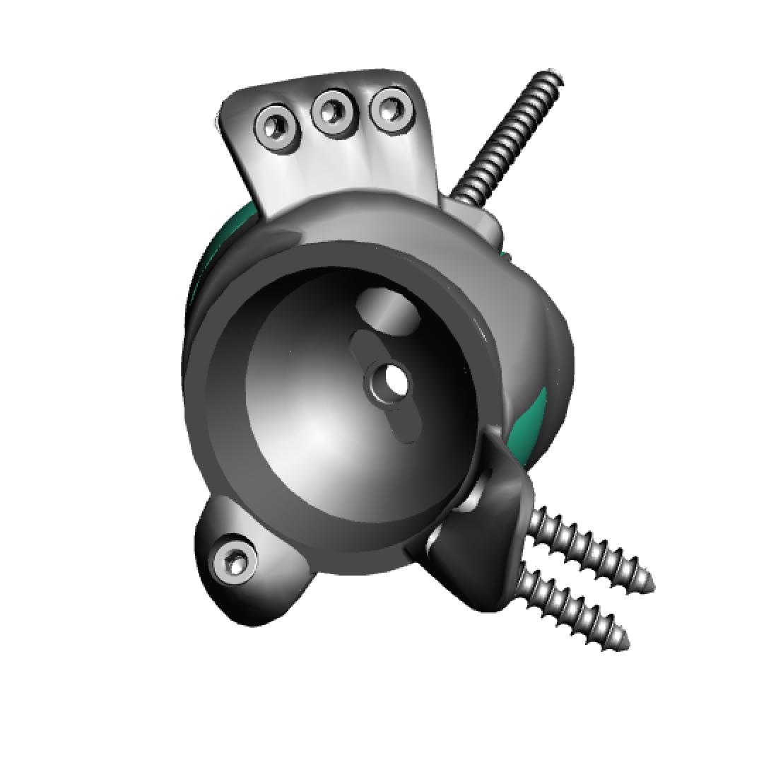 Implant design front.png