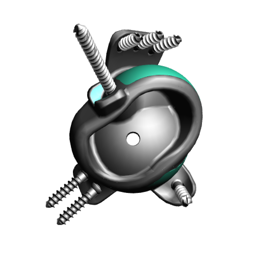 Implant design rear.png