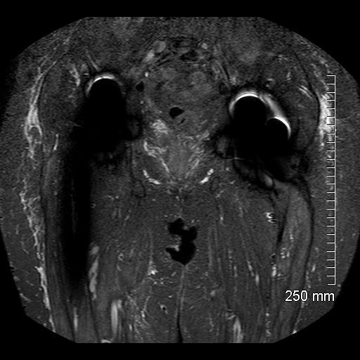 MRI-8.jpg