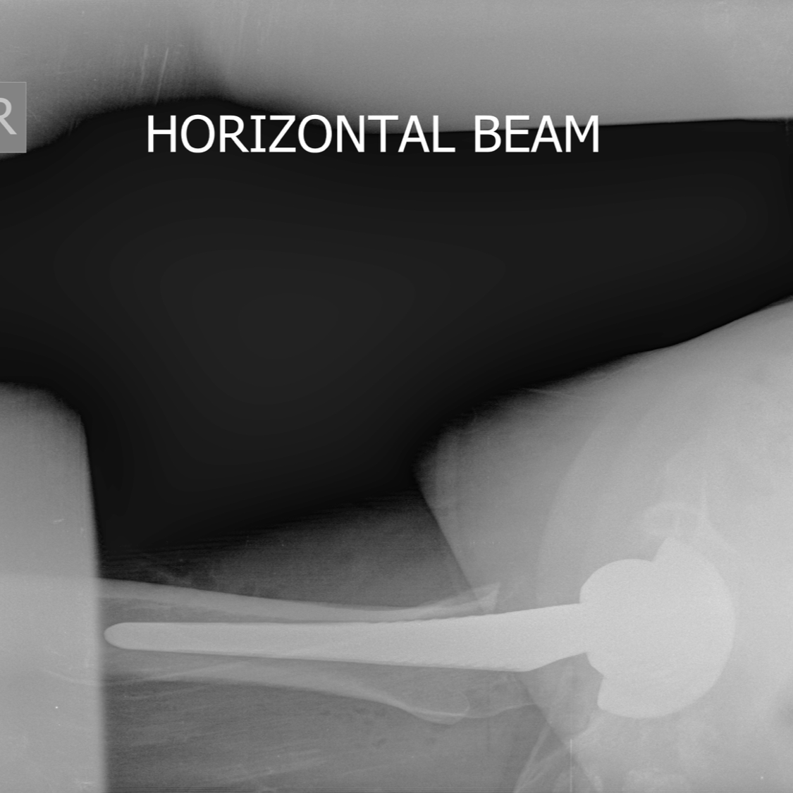 Post-op both hips CTL square.png
