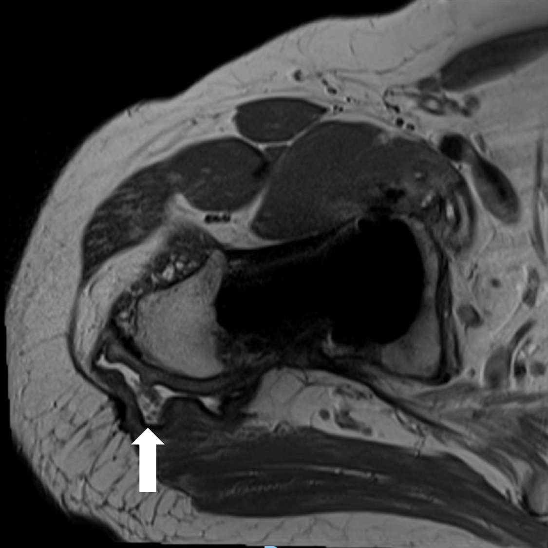 Pre-op MRI 2 arrow.png