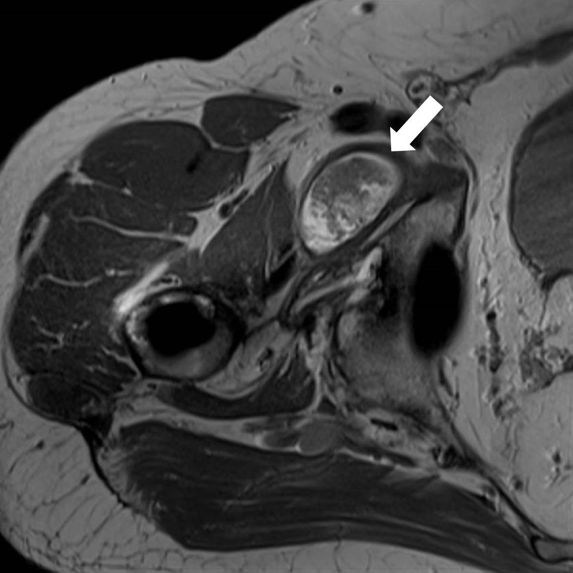 Pre-op MRI 1 arrow.png