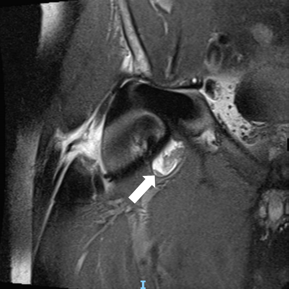 Pre-op MRI arrow.png