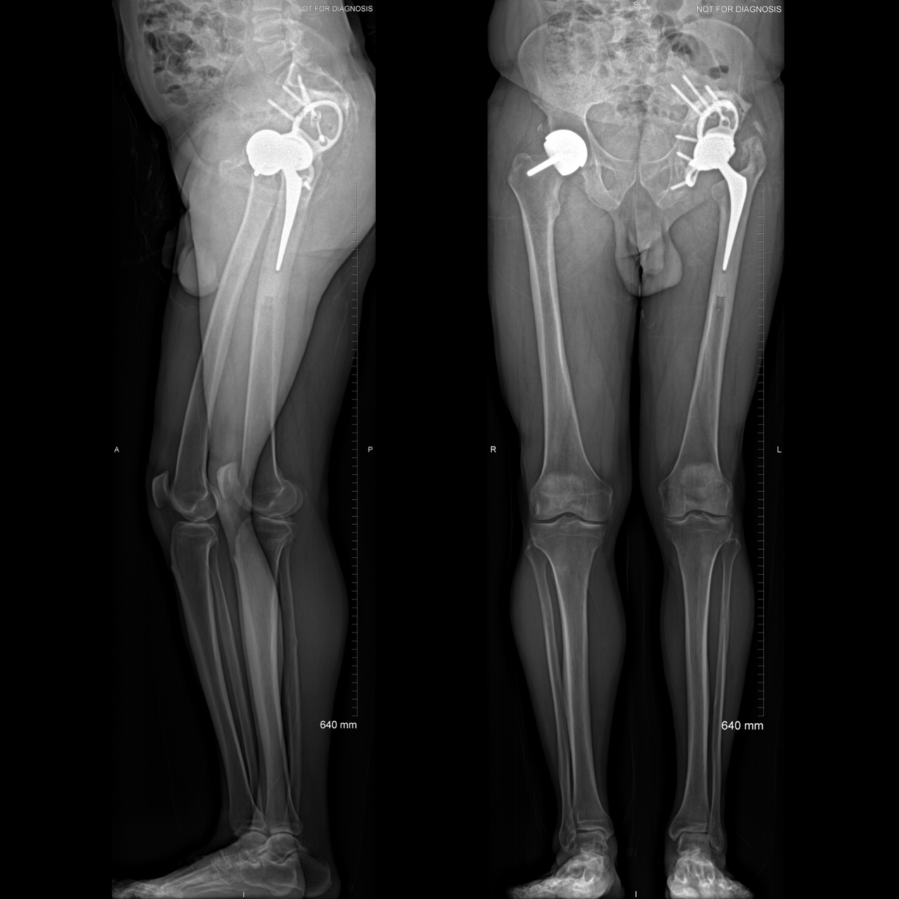 Standing square post-op EOS.png