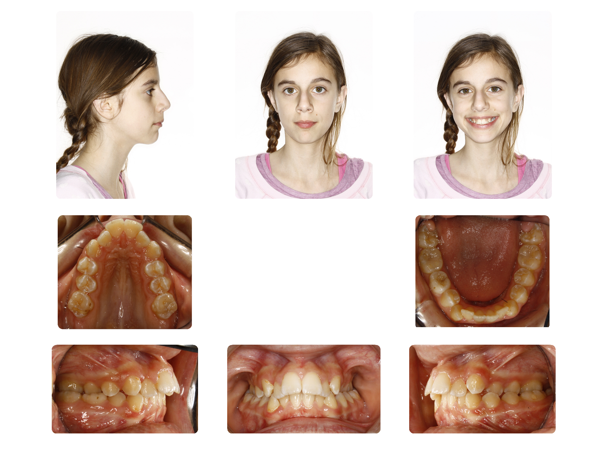 Before   Narrow upper arch with teeth in cross bite; Patient V.C started 12 Yrs. Old