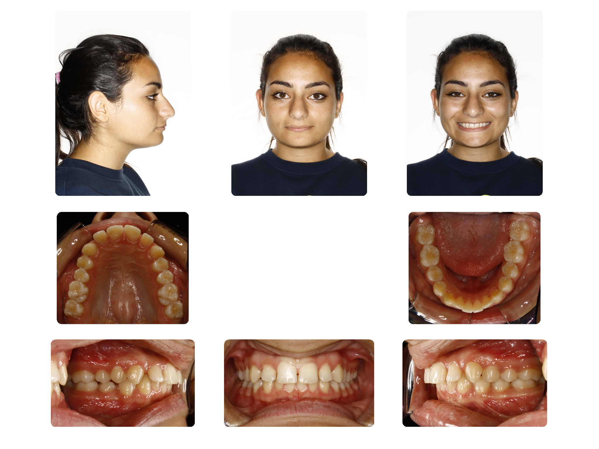 Before   Deep bite case; Patient R.M started 16Yrs. Old