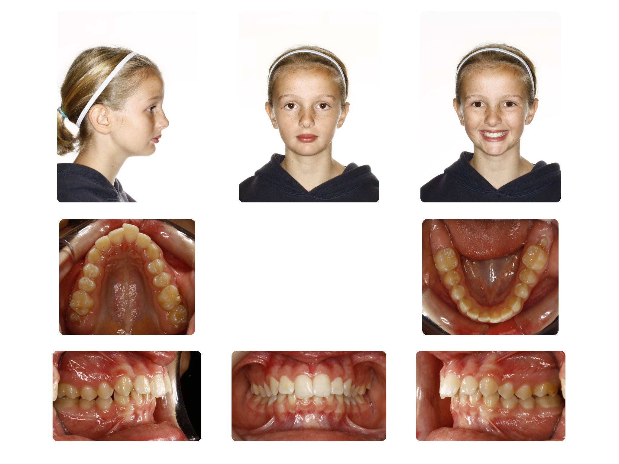 Before   Early Adolescent case with retruded chin profile treated with functional appliance and braces; E.R started 10.9Yrs.