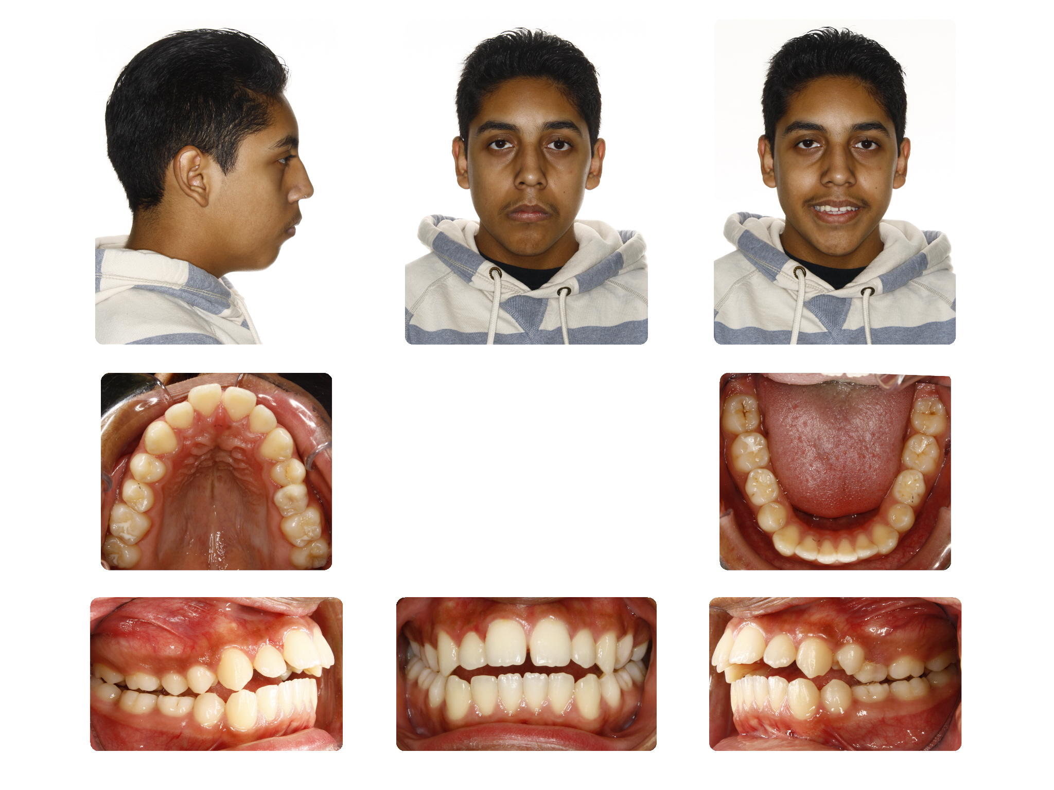 Before   Open Bite case; Patient J.S started 15Yrs. Old
