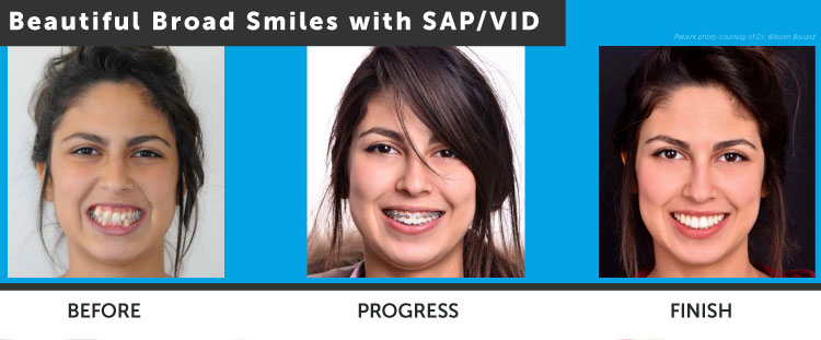Touni Orthodontics Treatment Stages