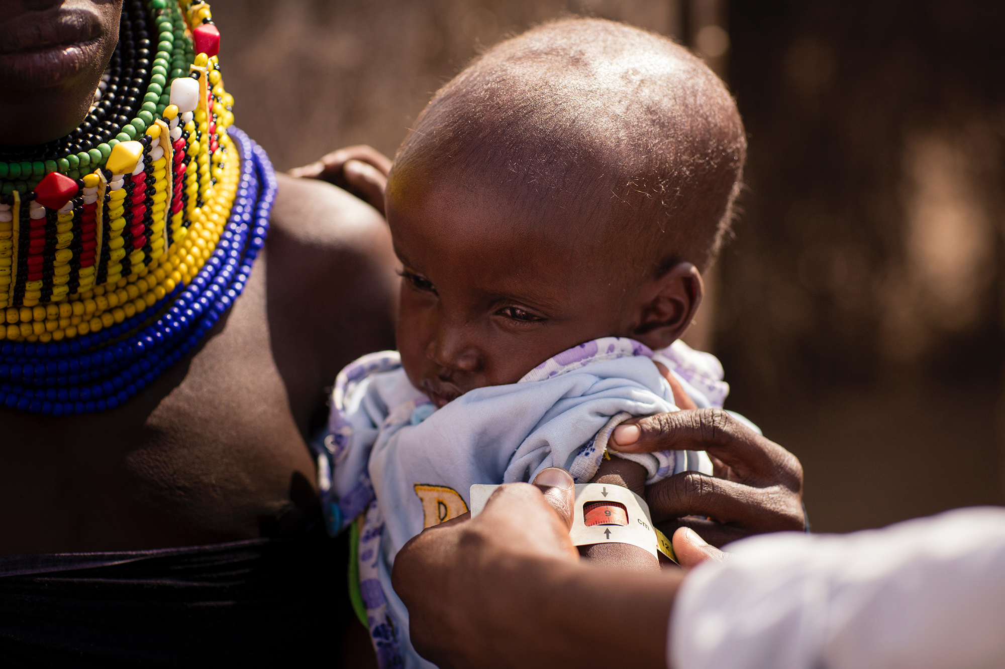 Extremely malnourished two-and-a-half-year-old boy in Natoo Village measures at the size and development of a seven-month old baby.
