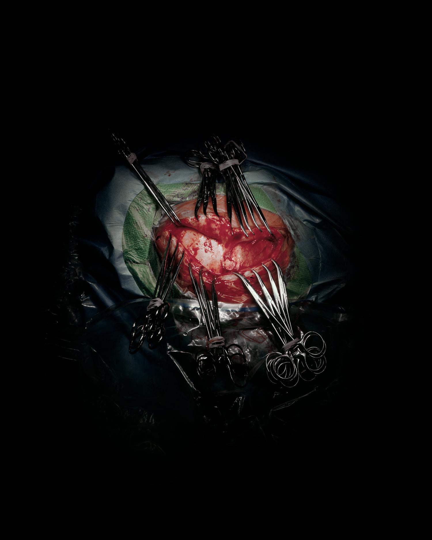 craniotomy-w.clamps.jpg