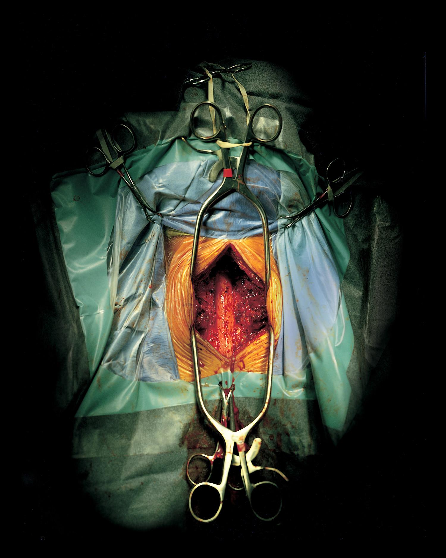 spinalCord.jpg