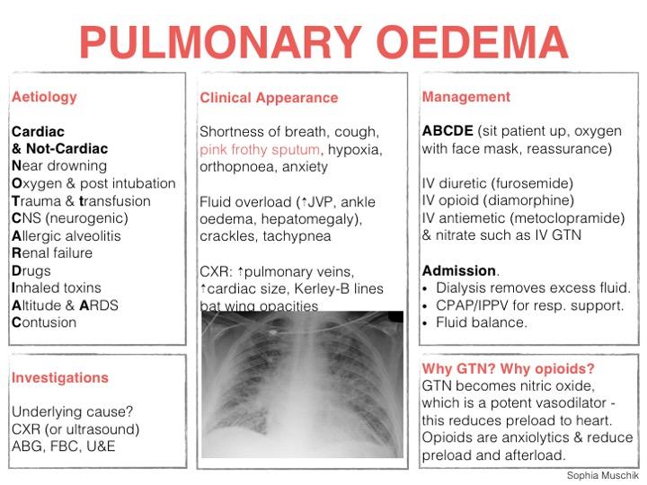Pulmonary Oedema Learned