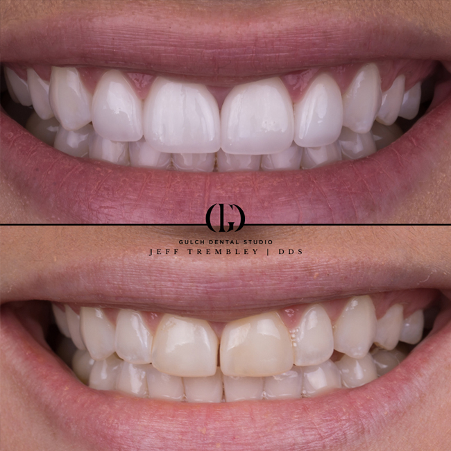 MicroDental_before_after