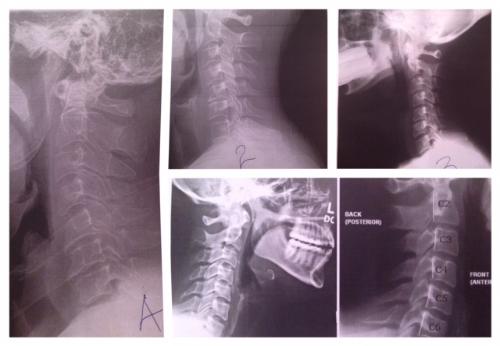 X-rays of different necks