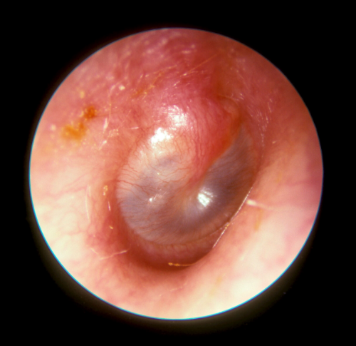 Picture of inflamed right eardrum with fluid behind the ear drum