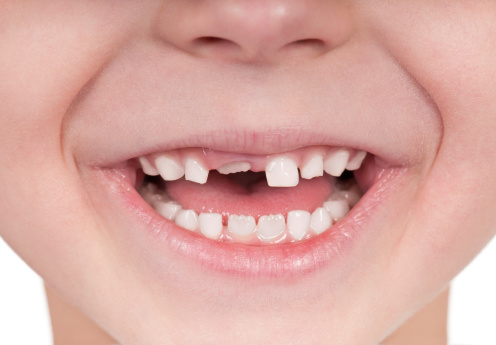 'Baby' teeth are pushed out and are replaced by permanent teeth. © Getty Images