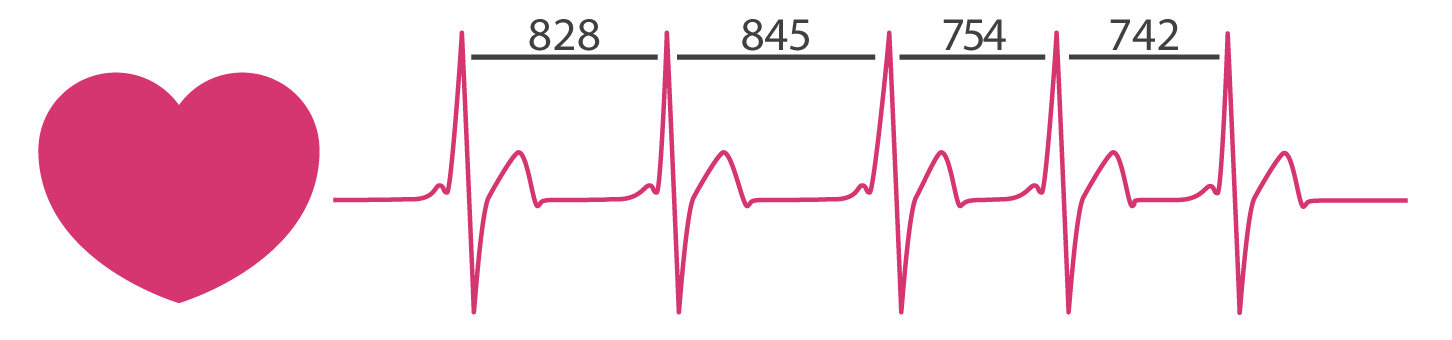 heart rate variability is the natural physiological phenomena of the variation in time between consecutive heartbeats