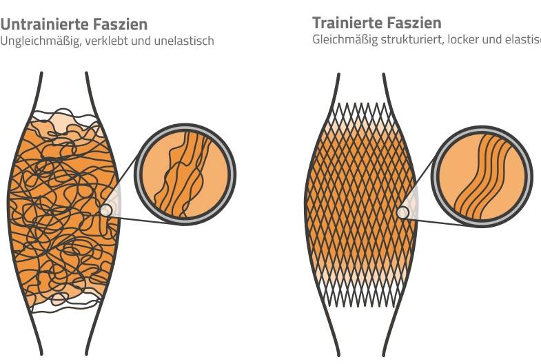 2015-02-11_BRO_Faszien-Darstellung_Muskelstruktur.jpg